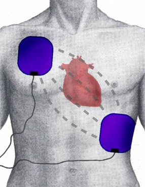 AED of defibrillator kopen
